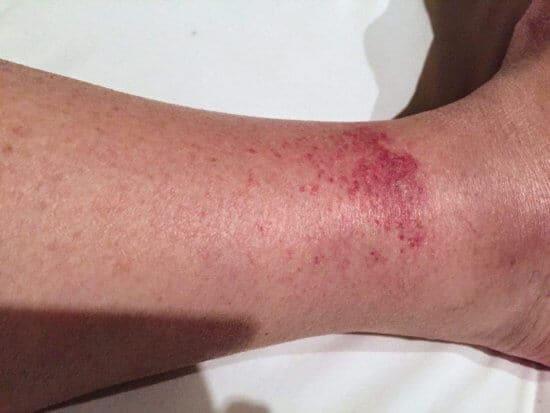the disney rash on a leg how to treat