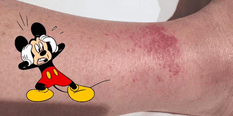 the disney rash header
