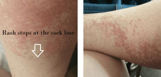 the disney rash sock line and how to treat